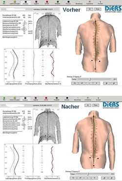 Korrektur der Körperstatik